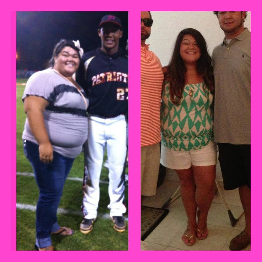 plexus slim before and after pics Healthy Living & Weight Loss